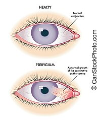 pterygium - medical illustration of the symptoms of...