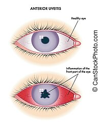 uveitis - medical illustration of the symptoms of  uveitis