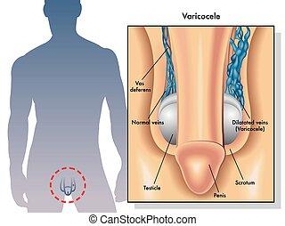 varicocele - medical illustration of the symptoms of ...