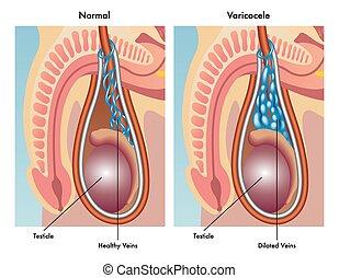 medical illustration of the symptoms of varicocele