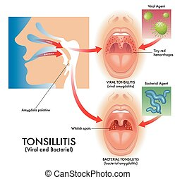 viral and bacterial tonsillitis - Medical illustration of ...