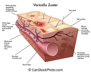 varicella zoster virus - medical illustration of the ...
