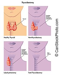 thyroidectomy - medical illustration of the various types of...