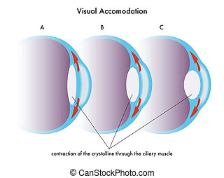 visual accomodation - medical illustration of the visual...