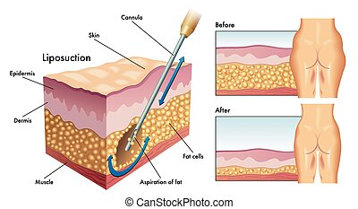 liposuction - medical illustration showing a liposuction...