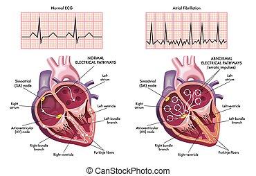 atrial fibrillation - Medical illustration showing the ...