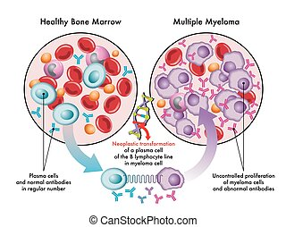 multiple myeloma - Medical illustration shows the ...