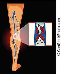 Medical Image of Varicose Veins