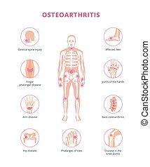 Medical scheme of osteoarthritis joint damage, flat vector illustration isolated.