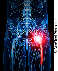painful sciatic nerve - medically accurate illustration of a...
