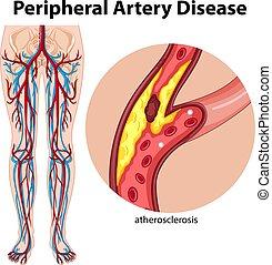 medicinsk, periferisk, sjukdom, pulsåder