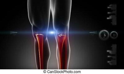 medicla, ludzkie kolano, skandować