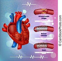 medico, aterosclerosi, bandiera, trattamento, metodi