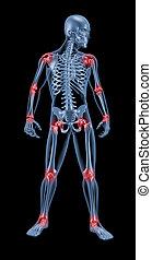 medisch, skelet, het benadrukken, gelid