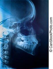 medische onderzoekende blik, van, de, menselijk hoofd