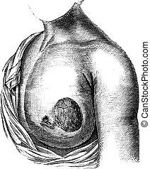 Medullary breast cancer, vintage engraved illustration. Usual Medicine Dictionary - Paul Labarthe - 1885.