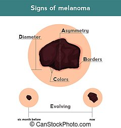 Melanoma ABCDE signs. Vector illustration of skin patch with...