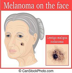Lentigo maligna melanoma on the cheek of an elderly woman