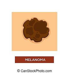 melanoma, rak, niebezpieczny, choroba, albo, skóra, pieprzyk