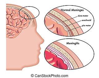 Meningitis - medical illustration of symptoms of meningitis