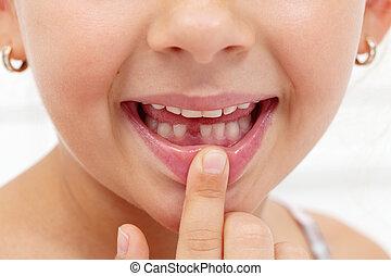 menininha, primeiro dente, ausente