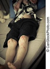 menino jovem, com, arranhões, ligado, pernas, mentindo, ligado, seu, cama
