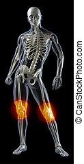 menneske knæ, medicinsk skander
