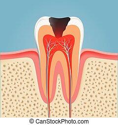 menneske, tand, hos, caries., aktie, vektor