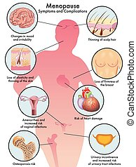 menopause - medical illustration of the symptoms and...