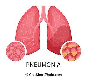 menschliche , pneumonia, lungen, oder, beschädigt, virus