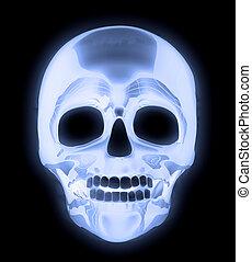 menschlicher schädel, röntgenaufnahme