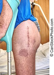 menschliches bein, mit, postoperativ, narbe, von, gelenk, surgery., detail, von, haut