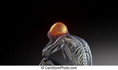 menselijk, mannelijke , hebben, hoofdpijn