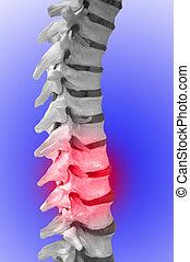menselijk, spinal-column, het tonen, rood, voor, pijn