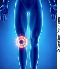 menselijke knie, probleem, met, aangepunt, gebied