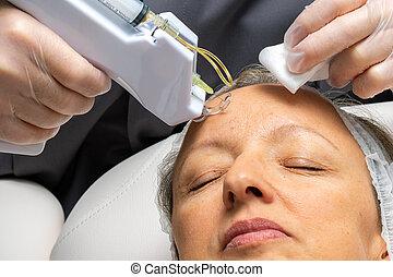 mesotherapy, femme, vieilli, forehead., micro, avoir, milieu, needling, thérapie