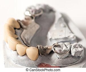 Metal Ceramic Bridge