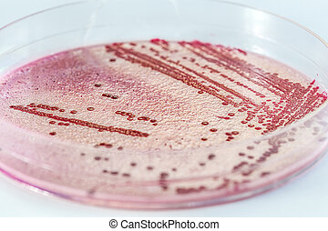 Microbiology - Closeup of a bacteria in petri dish, isolated...