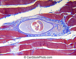 Trichinella spiralis is a parasite found in raw meat, which causes trichinosis. Focus = the center larvae, which has infected muscle tissue. 14MP camera, Leitz microscope, 16x.