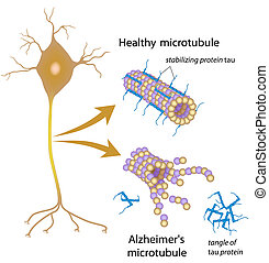 Disintegrating microtubules in Alzheimer's, eps8