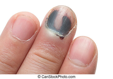 Middle Finger with Bruised Nail, Subungual Hematoma, on...