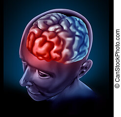 Migrain headache pain represented by a human brain with a...