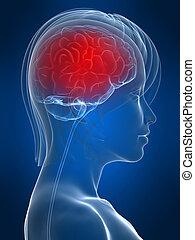 migraine の頭痛