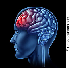 Migraine Concept - Brain head ache migraine concept as ...