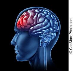 migraine, concept