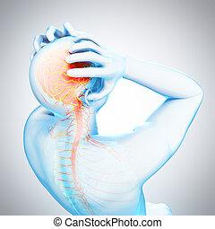 migraine, headache/