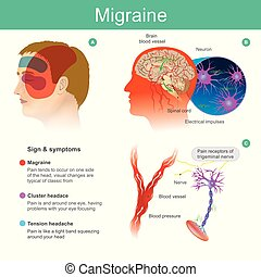 Migraine. Headache, pain, tend cooccur on one side of the head Pressured blood vessels reduce blood flow for brain. Illustration.