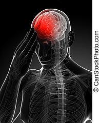 migraine/headache