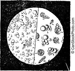 Milk seen under a microscope, vintage engraving.