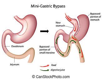 mini, gastrique, chirurgie, déviation, eps8